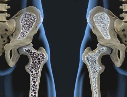 Osteoporosis – Your First Fracture Is An Emergency, Do Not Have A Second!